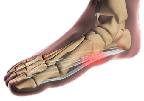 What-is-Plantar-Fasciitis-and-How-Do-I-Treat-It-removebg-preview
